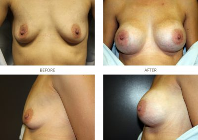 breast-augmentation-17-2