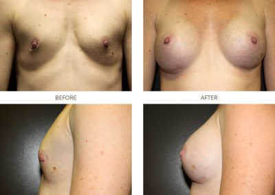 breast-augmentation-17-3