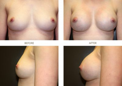 breast-augmentation-17-4