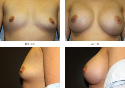 breast-augmentation-17-5