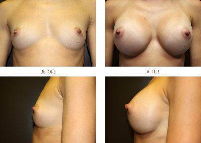 breast-augmentation-17-6