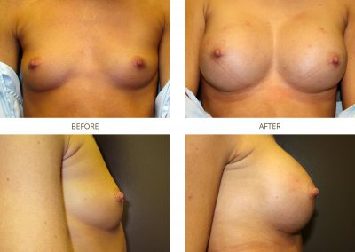 breast-augmentation-17-7