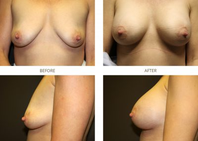 breast-augmentation-17-8