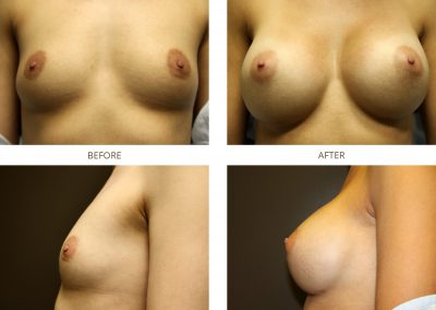 breast-augmentation-17-9
